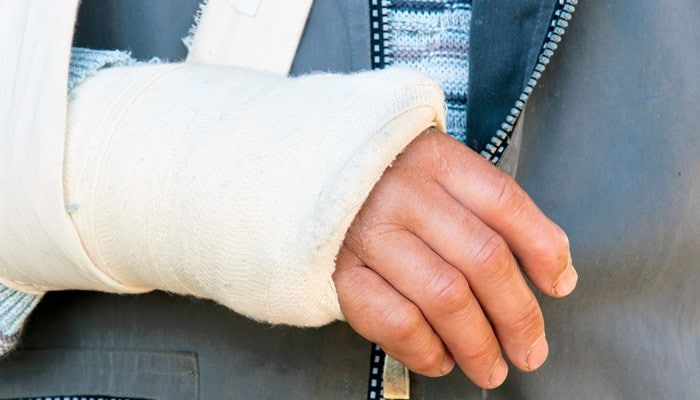 Broken bone accident injury compensation lawsuit Arizona