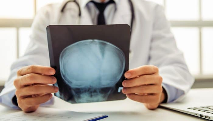 Head trauma, concussion, hematoma, and brain injury lawyers in Gilbert AZ